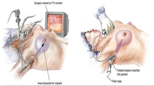 Phẫu thuật thẩm mỹ ngực giúp phụ nữ tự tin hơn 3
