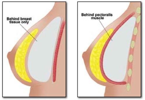 Nâng ngực giúp bạn có được bầu ngực căng tròn hấp dẫn1