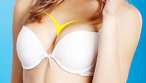 Bầu ngực dáng Y-line là ước mơ của nhiều người