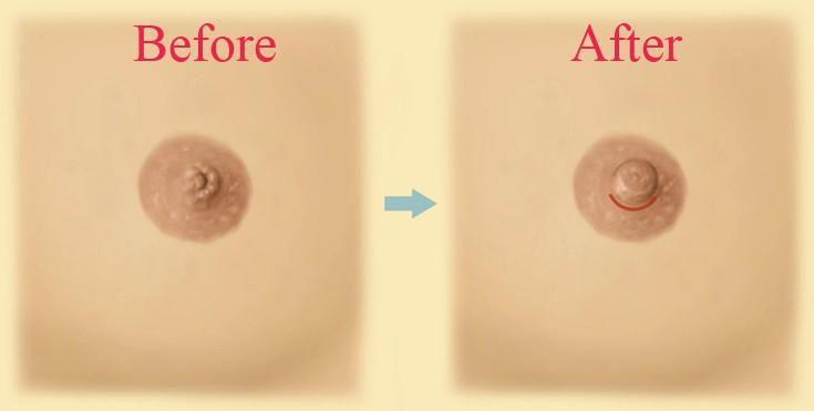 Kết quả thu nhỏ núm vú - gọn nhỏ hơn và không để lại sẹo1