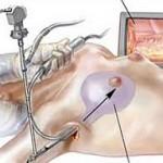 Ưu điểm của nâng ngực nội soi qua đường nách như thế nào?