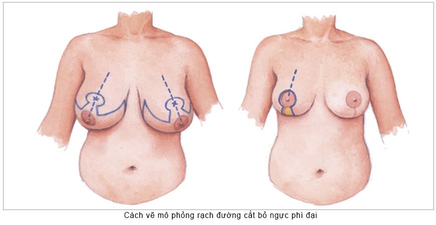 thu-gon-nguc-phi-dai-co-bien-chung-gi-khong (1)
