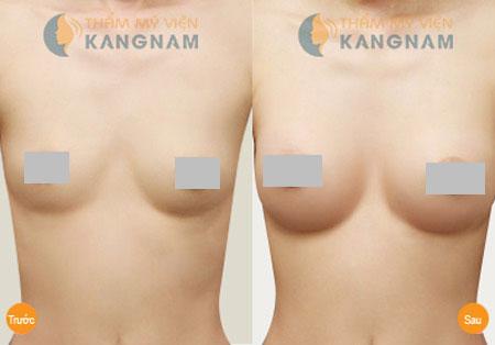 Phụ nữ không nên tự ti vì ngực teo nhỏ sau khi sinh5