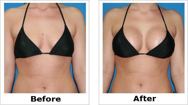Thẩm mỹ vòng 1 Y-line - Bí quyết để có bộ ngực to và đẹp tự nhiên 5