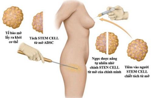 Mỡ tự thân - Chất liệu bơm ngực đẹp và an toàn6