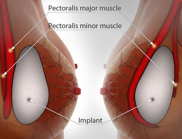 Vị trí túi ngực an toàn không gây kích ứng1