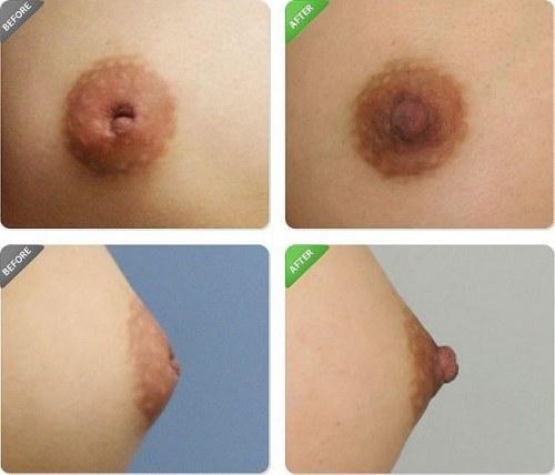 Phẫu thuật kéo núm vú bị tụt được bao lâu, kết quả có được lâu dài không