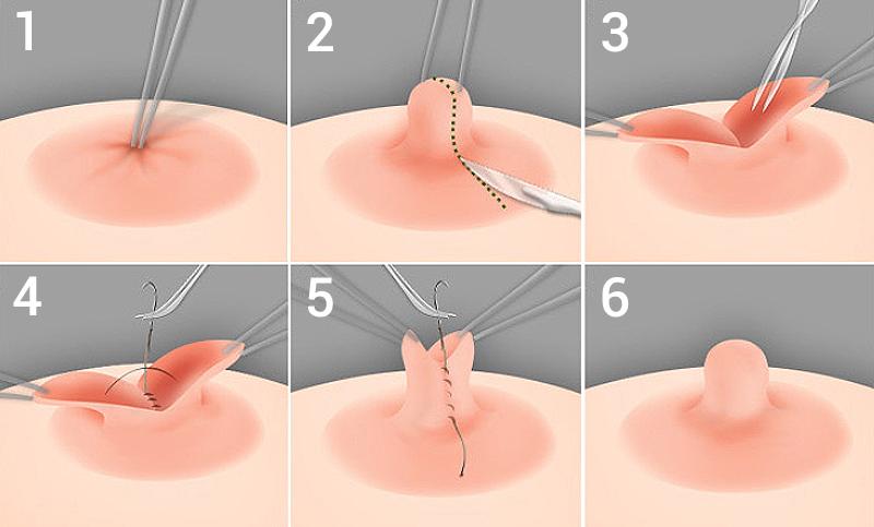 Quy trình giải đáp phẫu thuật kéo núm vú bị tụt được bao lâu?
