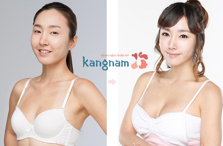happy-new-year-tang-ngay-10-trieu-nang-nguc-y-line-cn-han-quoc (7)