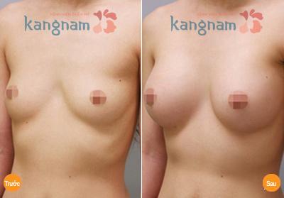 Khách hàng chia sẻ nâng ngực chảy xệ có nguy hiểm không
