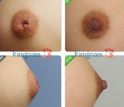 Kiểm chứng ngay hiệu quả kéo núm vú bị tụt tại Kangnam