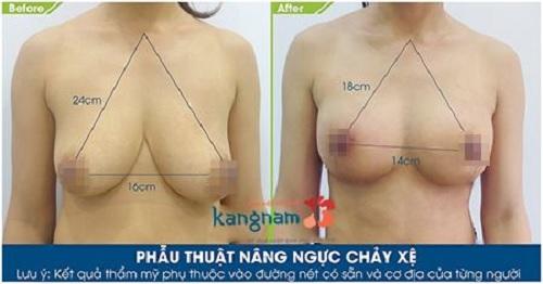 Ngực chảy xệ sau khi sinh