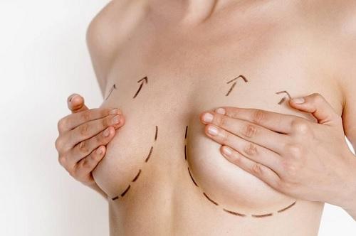 ngực chảy xệ sau sinh phải làm sao