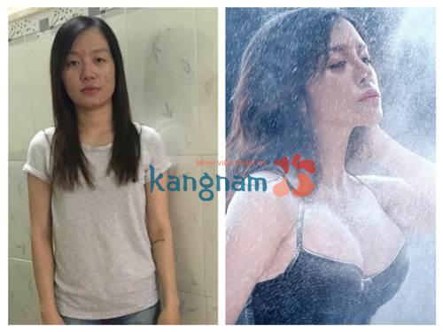 giam-20-nang-nguc-y-line-dep-my-man-chuan-quy-trinh-korean-beauty-triangle (1)