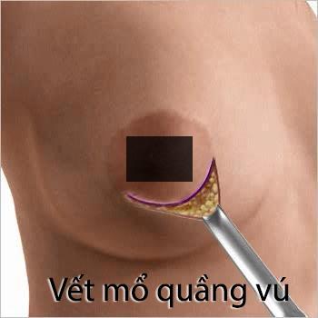 nang-nguc-qua-quang-vu-co-bi-mat-cam-giac-khong (1)