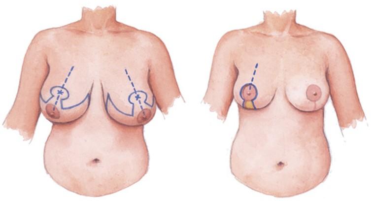 Phẫu thuật thu gọn vú phì đại có đau không?