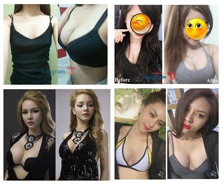 Phẫu thuật nâng ngực tại Kangnam có đẹp không?