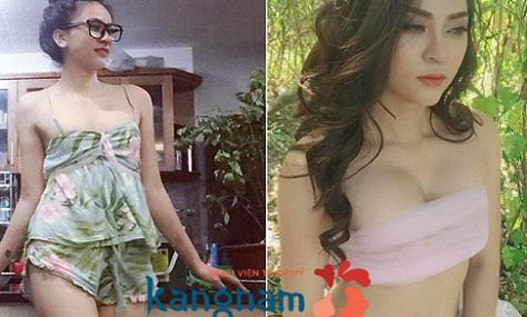 Ngực mềm mại tự nhiên của người mẫu Kim Anh sau 1 tháng thực hiện1