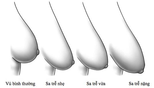 Các mức độ ngực chảy xệ từ nặng tới nhẹ 1
