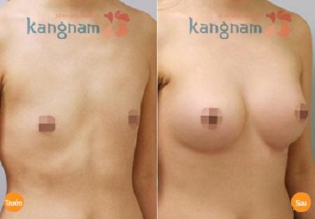 Cải thiện ngực không đều nhanh chóng, chỉ 1 lần duy nhất