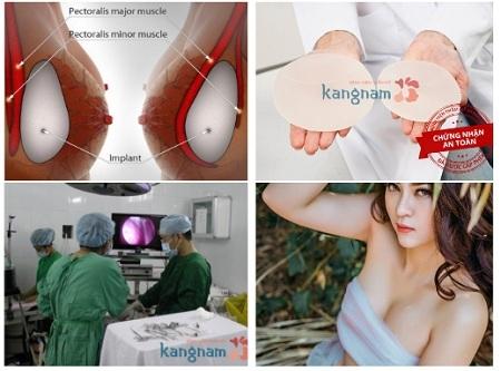 Những ưu điểm của phương pháp nâng ngực nội soi 1