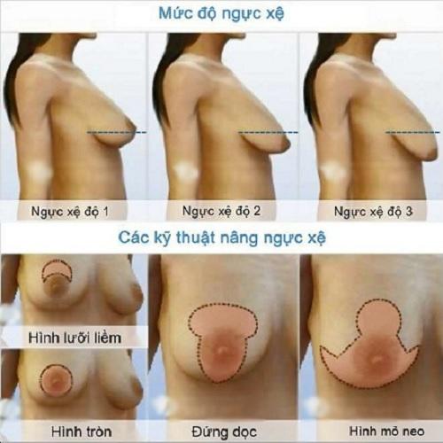 nâng ngực chảy xệ nội soi