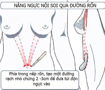 nâng ngực có để lại sẹo không 2