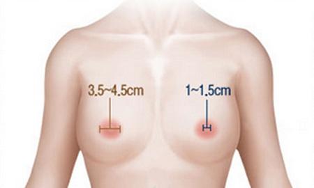 Phẫu thuật thu nhỏ quầng vú được bao lâu