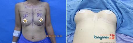 nâng ngực nội soi 4