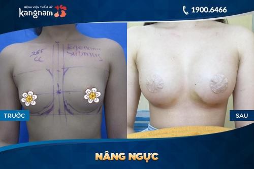 Hình ảnh khách hàng nâng ngực bằng mỡ tự thân