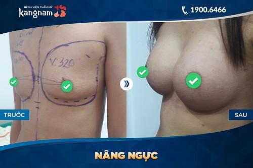Hình ảnh nâng ngực Nano Chip