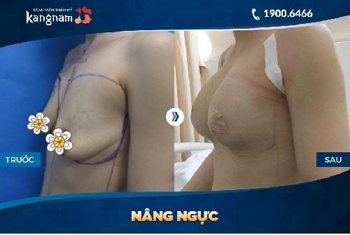 Hình ảnh nâng ngực nội soi ở Kangnam