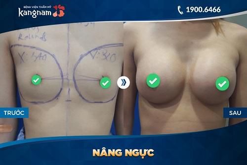 Hình ảnh nâng ngực nội soi