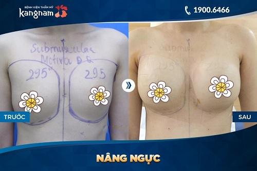 Hình ảnh nâng ngực túi độn nano