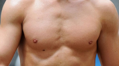 nốt ruồi ở ngực phải