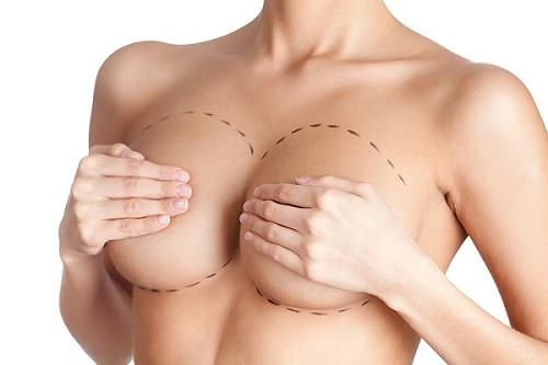 nâng ngực có được bóp mạnh không